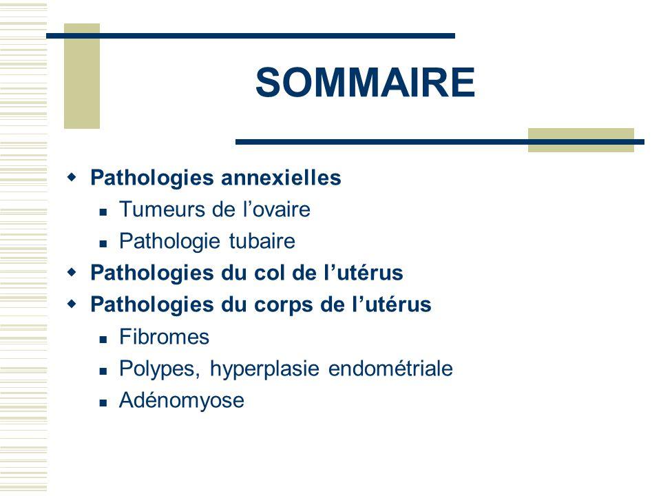 SOMMAIRE Pathologies annexielles Tumeurs de lovaire Pathologie tubaire Pathologies du col de lutérus Pathologies du corps de lutérus Fibromes Polypes, hyperplasie endométriale Adénomyose