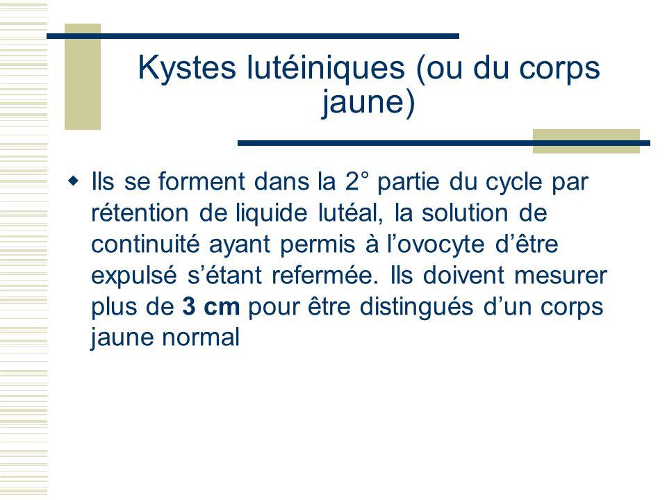 Kystes lutéiniques (ou du corps jaune) Ils se forment dans la 2° partie du cycle par rétention de liquide lutéal, la solution de continuité ayant permis à lovocyte dêtre expulsé sétant refermée.