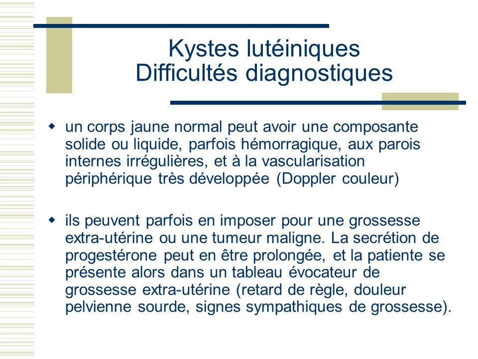 Kystes lutéiniques Difficultés diagnostiques un corps jaune normal peut avoir une composante solide ou liquide, parfois hémorragique, aux parois inter