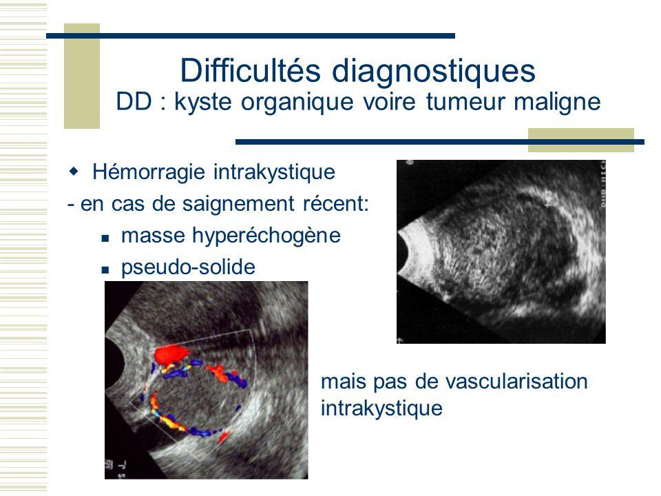 Difficultés diagnostiques DD : kyste organique voire tumeur maligne Hémorragie intrakystique - en cas de saignement récent: masse hyperéchogène pseudo-solide mais pas de vascularisation intrakystique