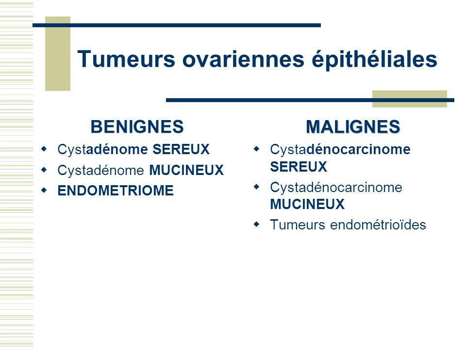 Tumeurs ovariennes épithéliales BENIGNES Cystadénome SEREUX Cystadénome MUCINEUX ENDOMETRIOMEMALIGNES Cystadénocarcinome SEREUX Cystadénocarcinome MUC