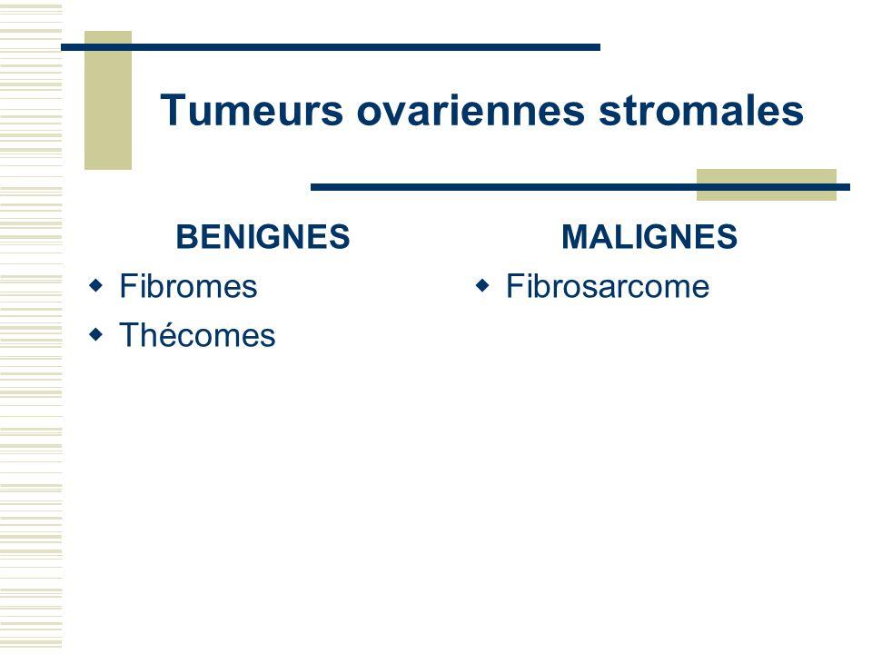 Tumeurs ovariennes stromales BENIGNES Fibromes Thécomes MALIGNES Fibrosarcome