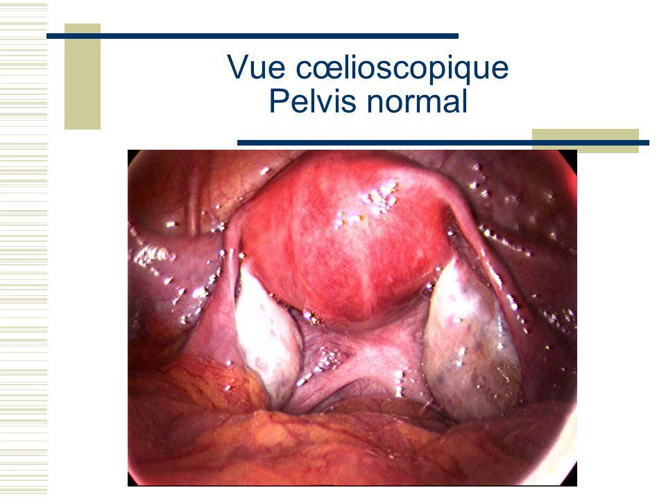 Cancer du col de lutérus aspect en IRM