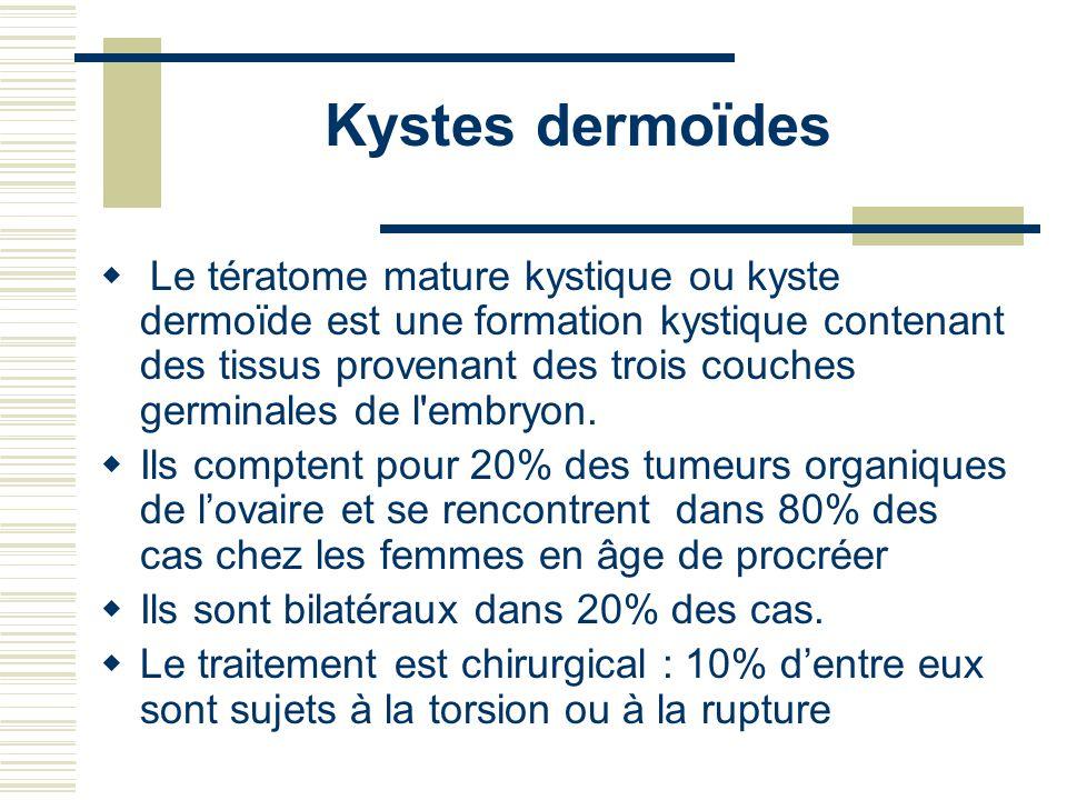 Kystes dermoïdes Le tératome mature kystique ou kyste dermoïde est une formation kystique contenant des tissus provenant des trois couches germinales de l embryon.