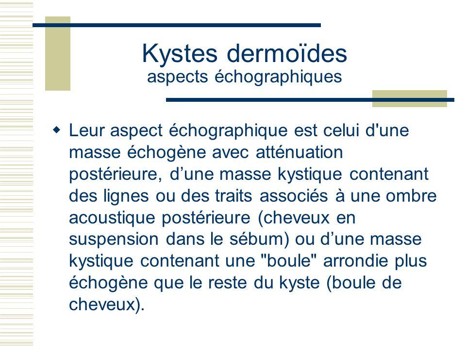 Kystes dermoïdes aspects échographiques Leur aspect échographique est celui d'une masse échogène avec atténuation postérieure, dune masse kystique con
