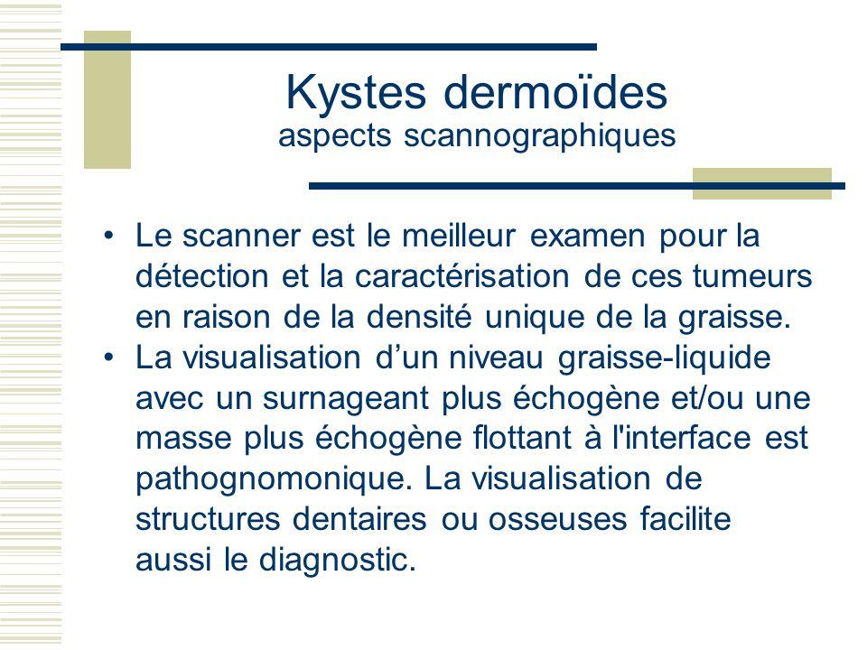 Kystes dermoïdes aspects scannographiques Le scanner est le meilleur examen pour la détection et la caractérisation de ces tumeurs en raison de la densité unique de la graisse.