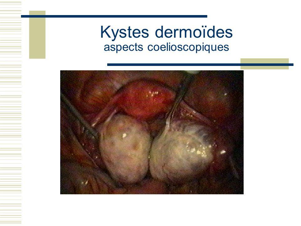 Kystes dermoïdes aspects coelioscopiques