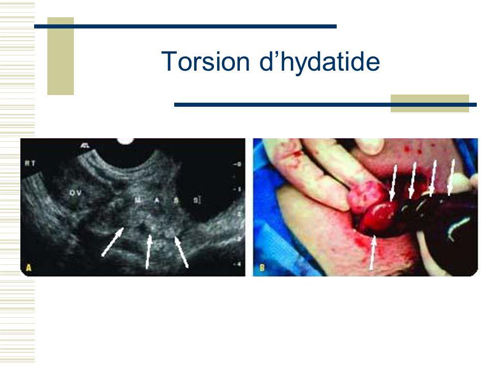 Torsion dhydatide