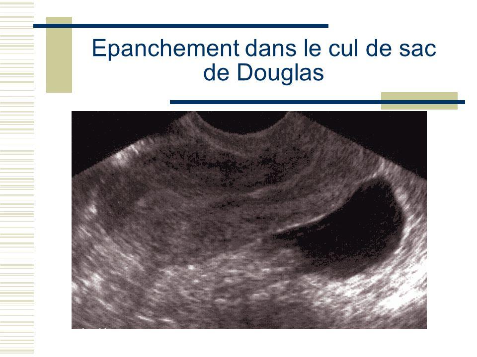 Epanchement dans le cul de sac de Douglas
