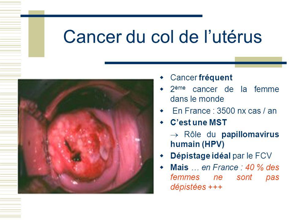 Cancer du col de lutérus Cancer fréquent 2 ème cancer de la femme dans le monde En France : 3500 nx cas / an Cest une MST Rôle du papillomavirus humain (HPV) Dépistage idéal par le FCV Mais … en France : 40 % des femmes ne sont pas dépistées +++