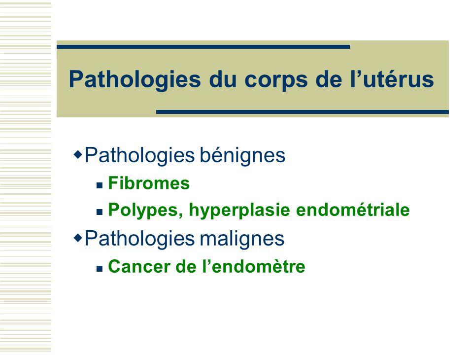Pathologies du corps de lutérus Pathologies bénignes Fibromes Polypes, hyperplasie endométriale Pathologies malignes Cancer de lendomètre