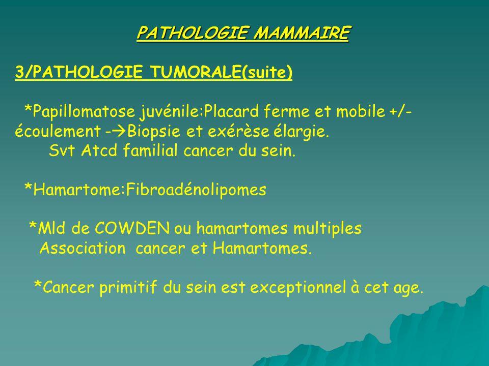 PATHOLOGIE MAMMAIRE 3/PATHOLOGIE TUMORALE(suite) *Papillomatose juvénile:Placard ferme et mobile +/- écoulement - Biopsie et exérèse élargie.