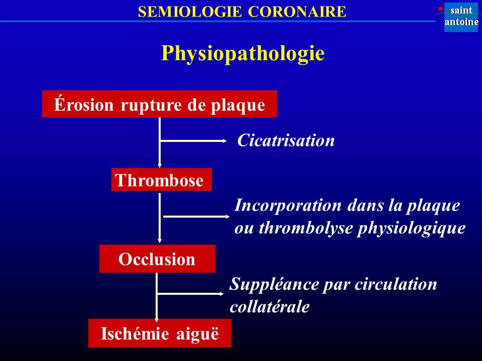 SEMIOLOGIE CORONAIRE Physiopathologie Érosion rupture de plaque Cicatrisation Thrombose Incorporation dans la plaque ou thrombolyse physiologique Isch