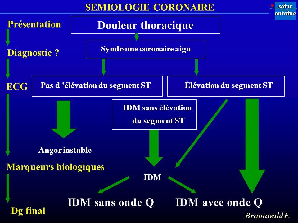 Syndrome coronaire aigu Pas d élévation du segment STÉlévation du segment ST Angor instable IDM avec onde Q IDM sans élévation du segment ST IDM IDM s