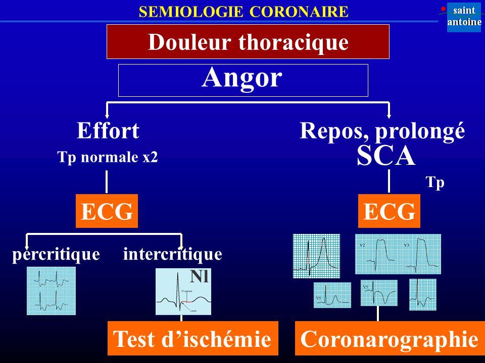 SEMIOLOGIE CORONAIRE Angor Douleur thoracique Effort ECG percritiqueintercritique Test dischémie Repos, prolongé ECG SCA Coronarographie Tp normale x2