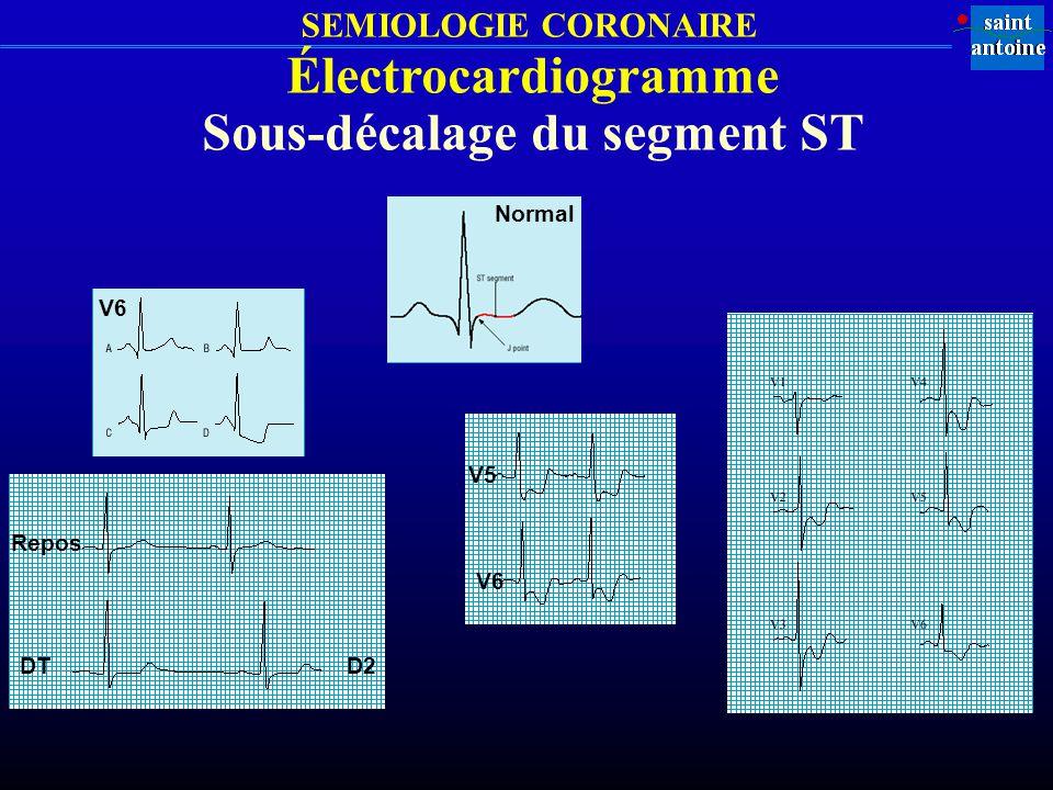 SEMIOLOGIE CORONAIRE Électrocardiogramme Sous-décalage du segment ST Repos DT V6 V5 V6 D2 Normal
