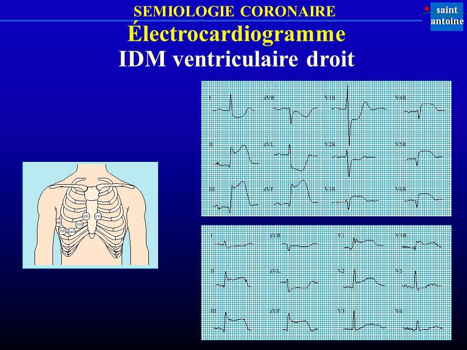 SEMIOLOGIE CORONAIRE Électrocardiogramme IDM ventriculaire droit