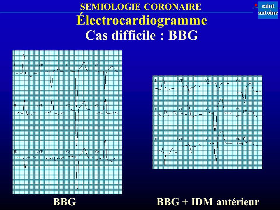 SEMIOLOGIE CORONAIRE Électrocardiogramme Cas difficile : BBG BBGBBG + IDM antérieur