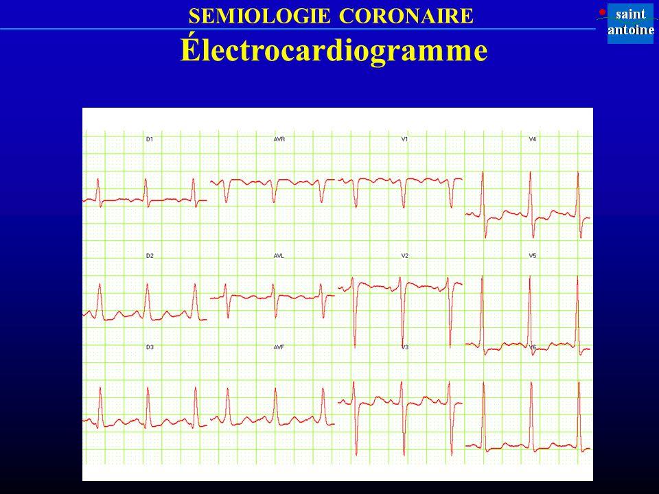 SEMIOLOGIE CORONAIRE Électrocardiogramme
