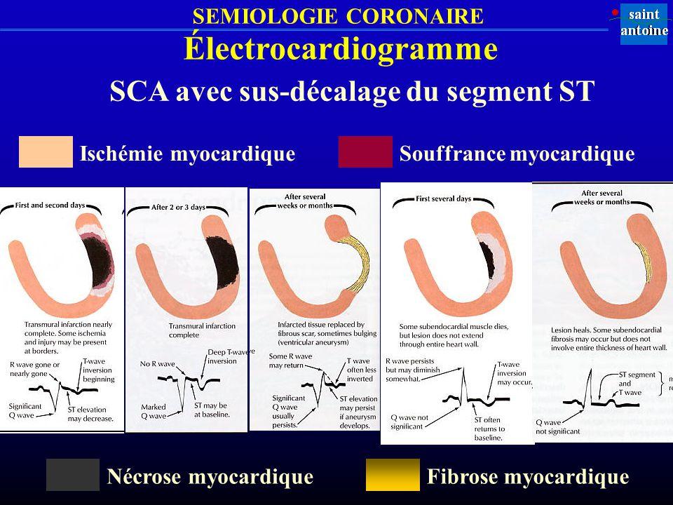 SEMIOLOGIE CORONAIRE Électrocardiogramme SCA avec sus-décalage du segment ST Nécrose myocardiqueFibrose myocardique Ischémie myocardiqueSouffrance myo