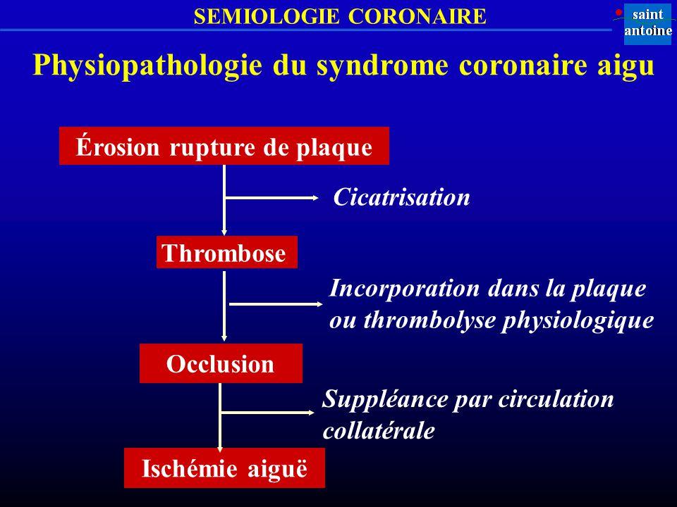 SEMIOLOGIE CORONAIRE Physiopathologie du syndrome coronaire aigu Érosion rupture de plaque Cicatrisation Thrombose Incorporation dans la plaque ou thr