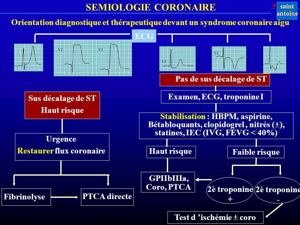 SEMIOLOGIE CORONAIRE Orientation diagnostique et thérapeutique devant un syndrome coronaire aigu Sus décalage de ST Haut risque Urgence Restaurer flux