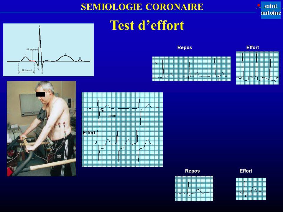 SEMIOLOGIE CORONAIRE Test deffort Repos Effort ReposEffort