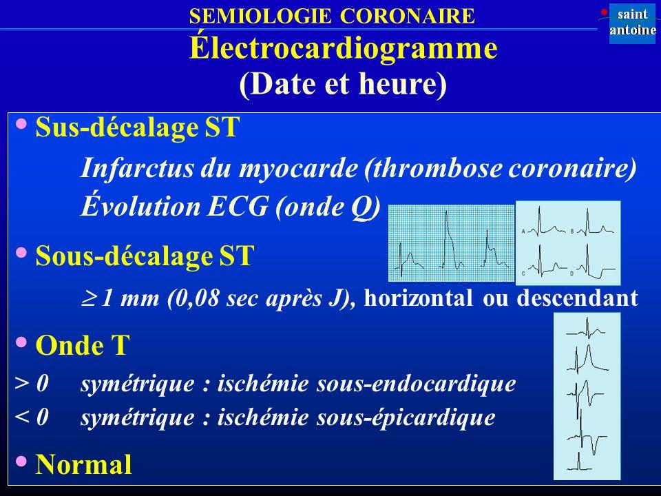 SEMIOLOGIE CORONAIRE Sus-décalage ST Infarctus du myocarde (thrombose coronaire) Évolution ECG (onde Q) Sous-décalage ST 1 mm (0,08 sec après J), hori