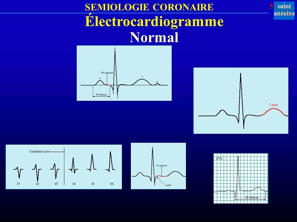 SEMIOLOGIE CORONAIRE Électrocardiogramme Normal