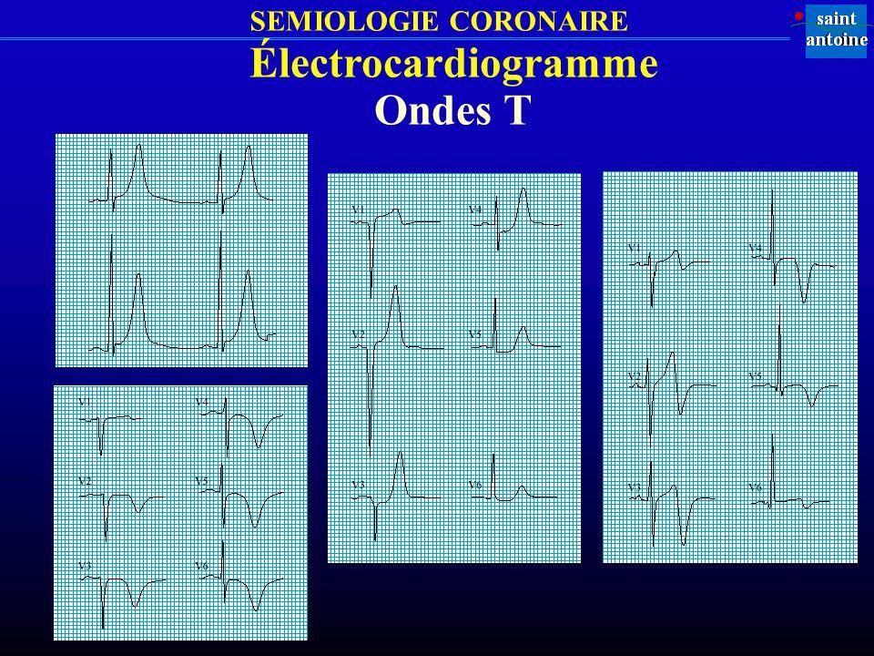 SEMIOLOGIE CORONAIRE Électrocardiogramme Ondes T