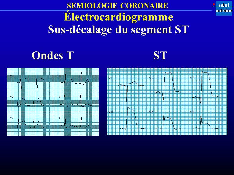 SEMIOLOGIE CORONAIRE Électrocardiogramme Sus-décalage du segment ST Ondes TST