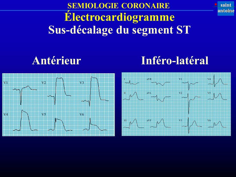 SEMIOLOGIE CORONAIRE Électrocardiogramme Sus-décalage du segment ST AntérieurInféro-latéral