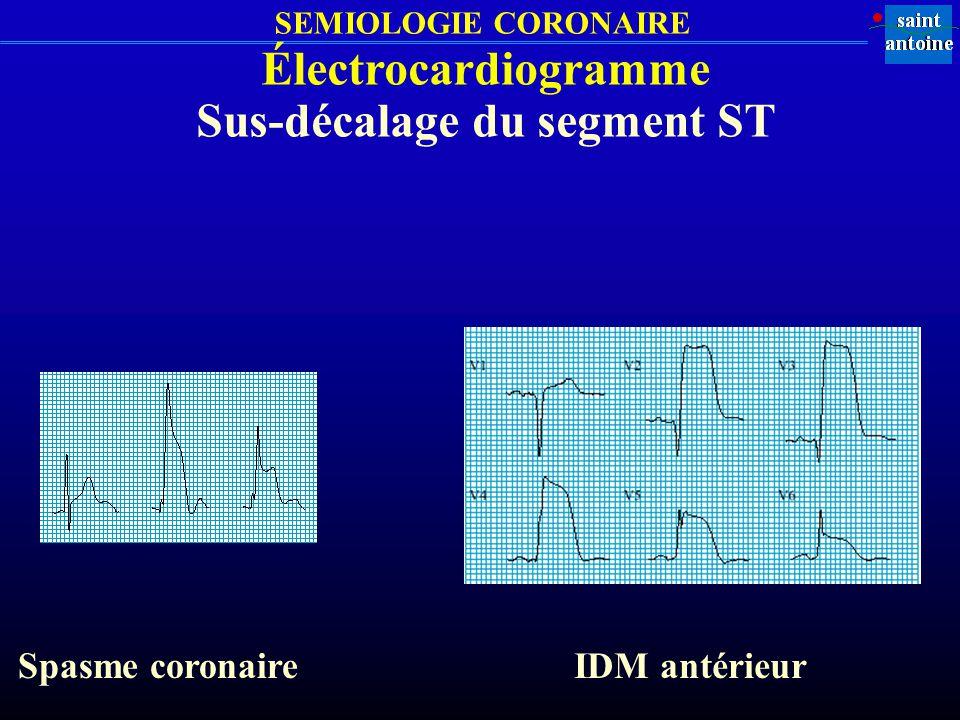 SEMIOLOGIE CORONAIRE Électrocardiogramme Sus-décalage du segment ST Spasme coronaireIDM antérieur