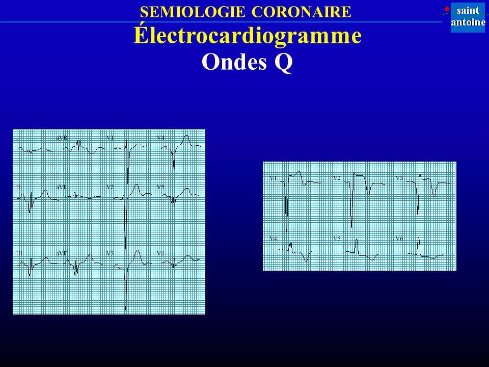 SEMIOLOGIE CORONAIRE Électrocardiogramme Ondes Q