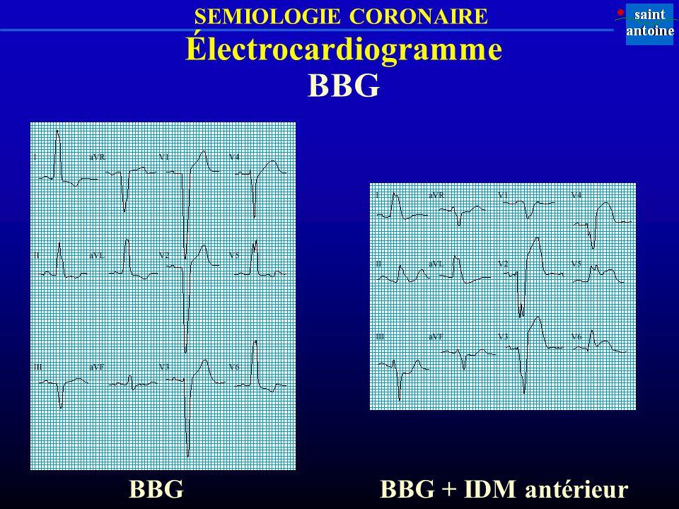 SEMIOLOGIE CORONAIRE Électrocardiogramme BBG BBG + IDM antérieur