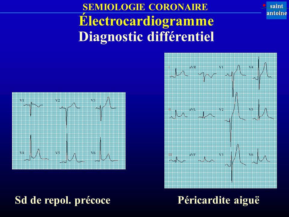 SEMIOLOGIE CORONAIRE Sd de repol. précoce Électrocardiogramme Diagnostic différentiel Péricardite aiguë
