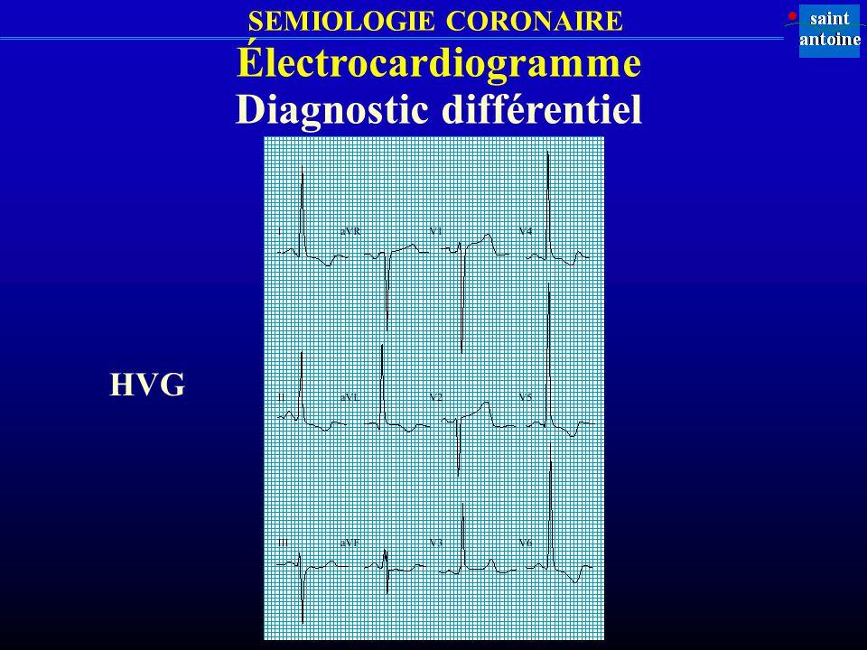 SEMIOLOGIE CORONAIRE Électrocardiogramme Diagnostic différentiel HVG