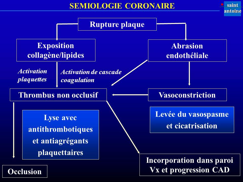 SEMIOLOGIE CORONAIRE Rupture plaque Exposition collagène/lipides Abrasion endothéliale Thrombus non occlusif Occlusion Lyse avec antithrombotiques et