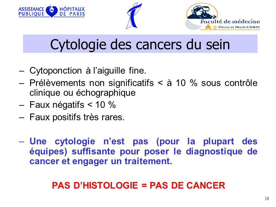 Cytologie des cancers du sein –Cytoponction à laiguille fine.