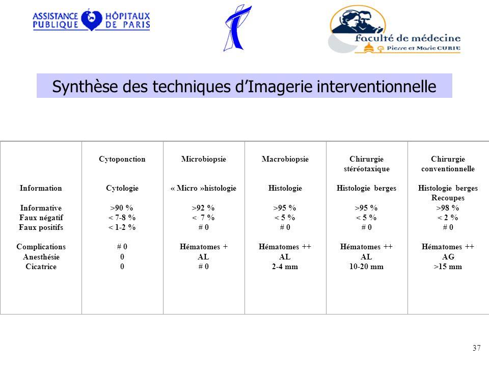Information Informative Faux négatif Faux positifs Complications Anesthésie Cicatrice Cytoponction Cytologie >90 % < 7-8 % < 1-2 % # 0 0 Microbiopsie