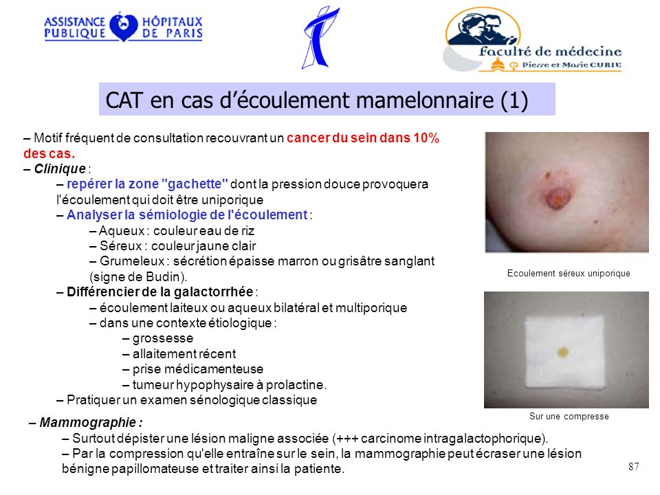 – Motif fréquent de consultation recouvrant un cancer du sein dans 10% des cas.