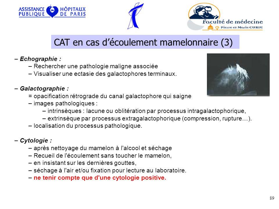 – Echographie : – Rechercher une pathologie maligne associée – Visualiser une ectasie des galactophores terminaux.