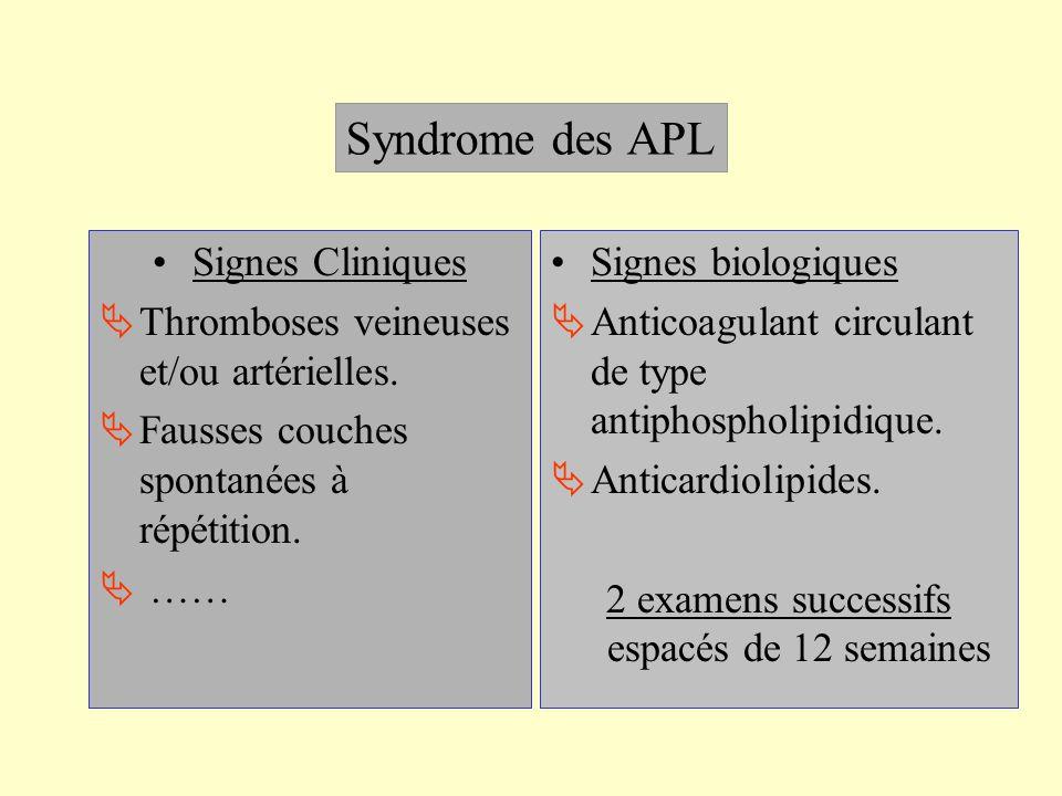 Syndrome des APL Signes Cliniques Thromboses veineuses et/ou artérielles. Fausses couches spontanées à répétition. …… Signes biologiques Anticoagulant