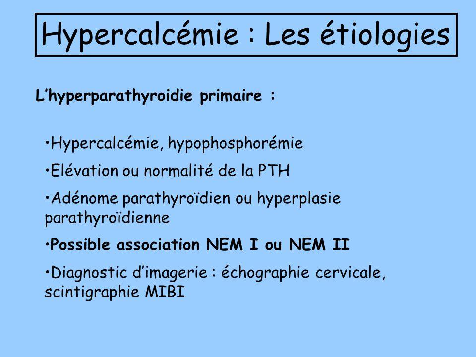 Hypercalcémie : Les étiologies Lhyperparathyroidie primaire : Hypercalcémie, hypophosphorémie Elévation ou normalité de la PTH Adénome parathyroïdien