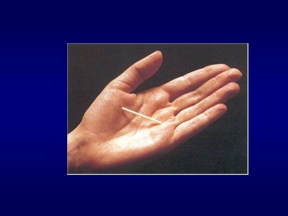 Généralités 1909: Richter 1960: découverte du Polyéthylène 1962: DIU au fil de cuivre ; 3 catégories: - fil de cuivre 2OO mm² - fil de cuivre 250 mm², noyau d argent (Nova T) - fil de cuivre 375, 380 mm² ( Gynelle, Sertalia,GyneT 380) Première méthode de contraception réversible dans le monde En France,deuxième méthode (16%) après la pilule (37%) Index de Pearl : 1 pour 100 femmes- années Mécanismes d action: - modifications biochimiques et morphologiques de l endomètre empêchant la nidation -effet nocif direct sur le blastocyste -altération des spermatozoïdes et peut être de l ovule