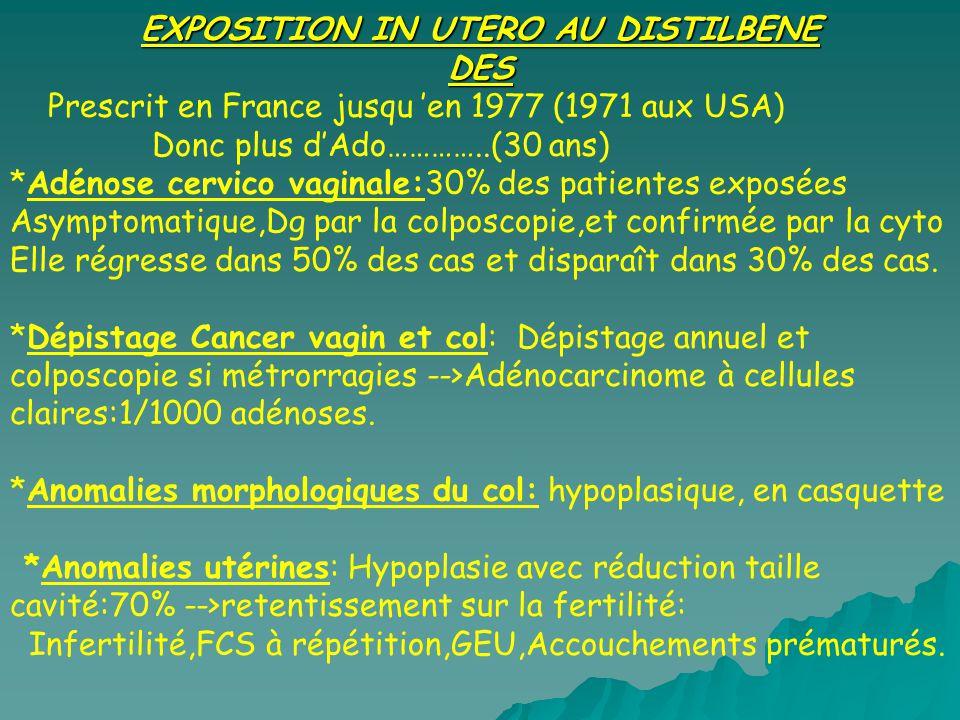 EXPOSITION IN UTERO AU DISTILBENE DES Prescrit en France jusqu en 1977 (1971 aux USA) Donc plus dAdo…………..(30 ans) *Adénose cervico vaginale:30% des p
