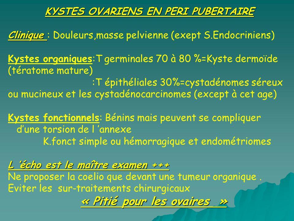 KYSTES OVARIENS EN PERI PUBERTAIRE Clinique Clinique : Douleurs,masse pelvienne (exept S.Endocriniens) Kystes organiques:T germinales 70 à 80 %=Kyste