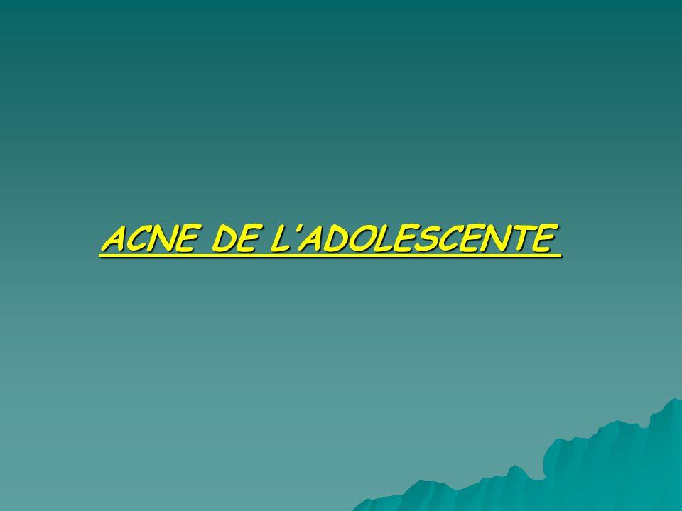 ACNE DE LADOLESCENTE