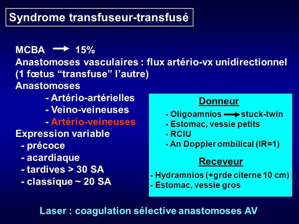Syndrome transfuseur-transfusé MCBA15% Anastomoses vasculaires : flux artério-vx unidirectionnel (1 fœtus transfuse lautre) Anastomoses - Artério-artérielles - Veino-veineuses - Artério-veineuses Expression variable - précoce - acardiaque - tardives > 30 SA - classique ~ 20 SA - Oligoamnios stuck-twin - Estomac, vessie petits - RCIU - An Doppler ombilical (IR=1) - Hydramnios (+grde citerne 10 cm) - Estomac, vessie gros Donneur Receveur Laser : coagulation sélective anastomoses AV