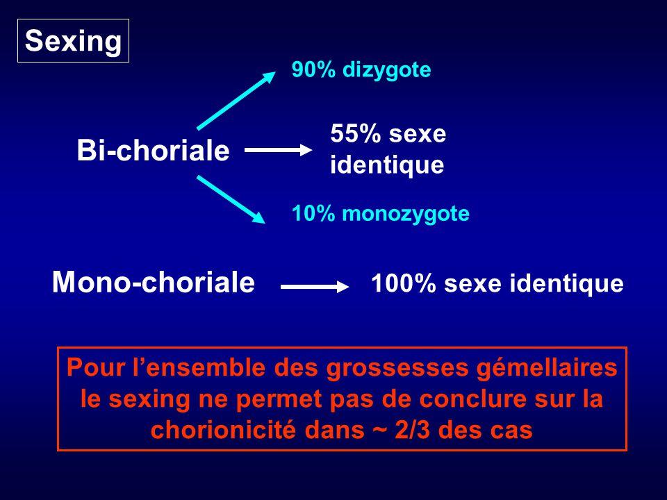 Sexing Bi-choriale Mono-choriale 100% sexe identique 55% sexe identique 90% dizygote 10% monozygote Pour lensemble des grossesses gémellaires le sexing ne permet pas de conclure sur la chorionicité dans ~ 2/3 des cas